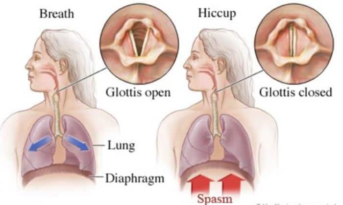 diaphragm spasm