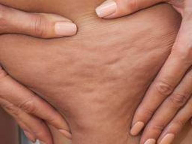 Home Remedies To Get Rid Of Cellulite