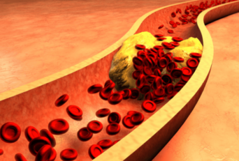 Hyperlipidemia : Remedies, Causes, Symptoms, Classification