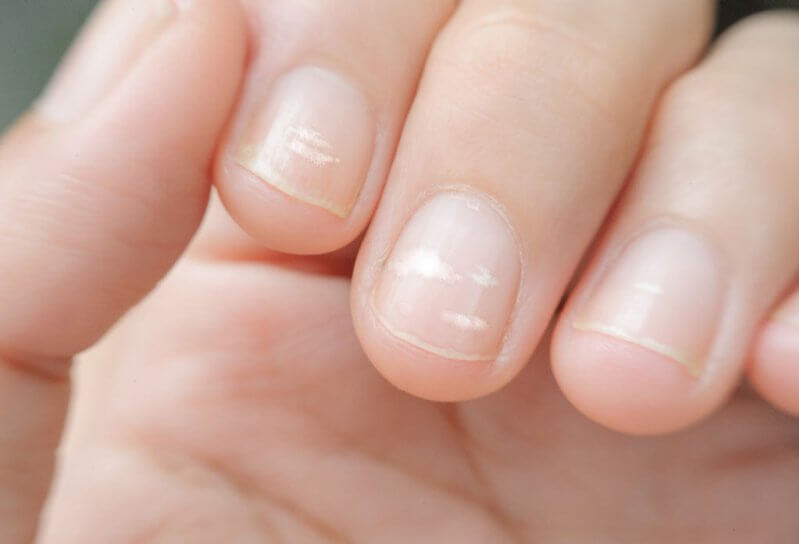 White Spot on Nails (Leukonychia)- Causes, Prevention and Treatment