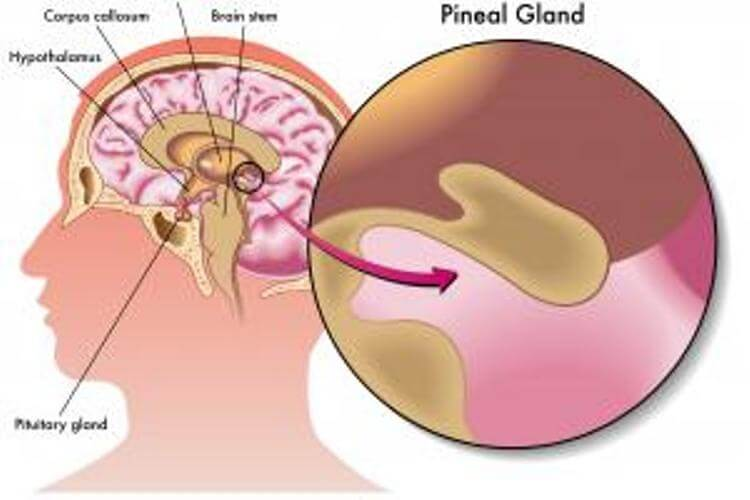 Signs And Symptoms Of The Pineal Gland Calcification
