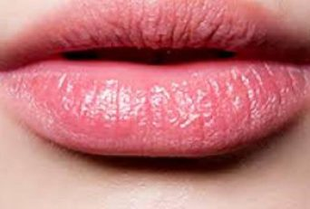 Is Diet A Reason For My Chapped Lips?