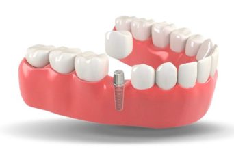 Dental Implants-Jewels Of Your Mouth