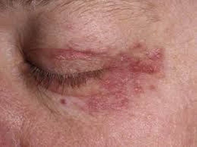Home Remedies To Get Rid Of Rash Around The Eyes